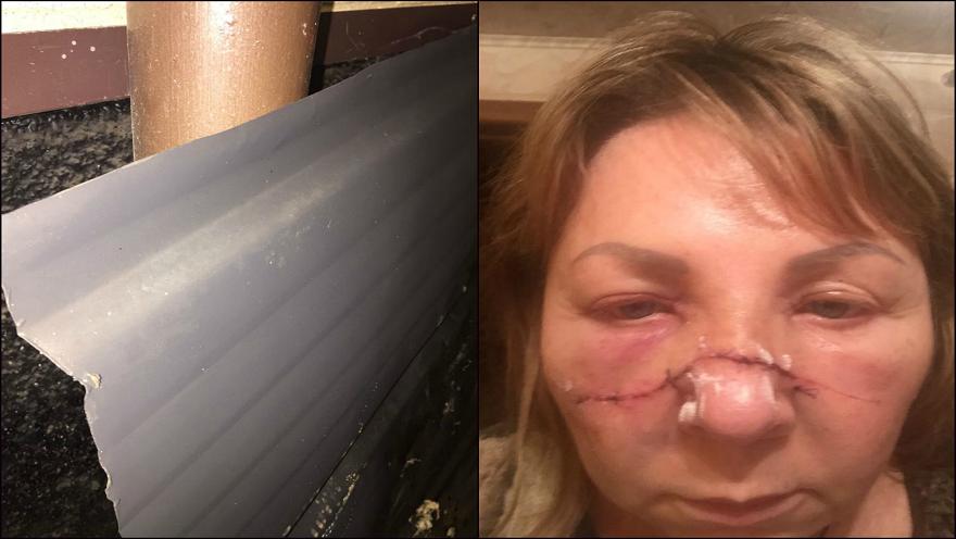 Нападение на руководителя Всеволжского «ЯБЛОКА»: женщине рассекли лицо листом железа